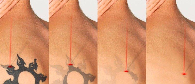 Las manchas de pigmento al embarazo que arreglar