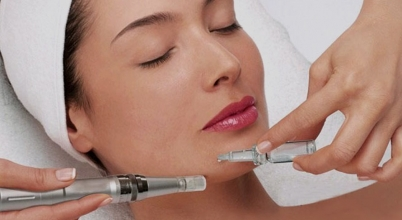 Mesolitting facial con Dermapen